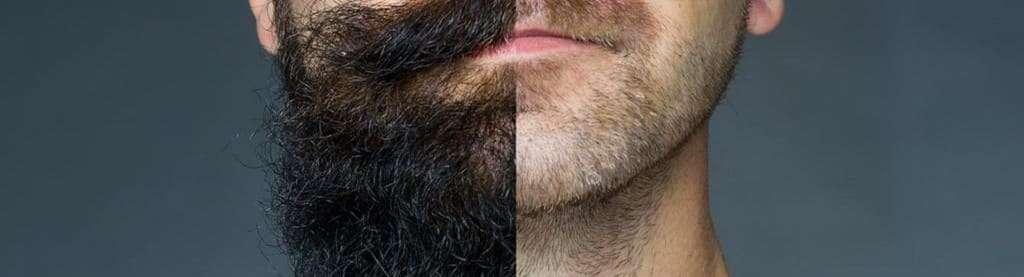 verite accelerer pousse barbe